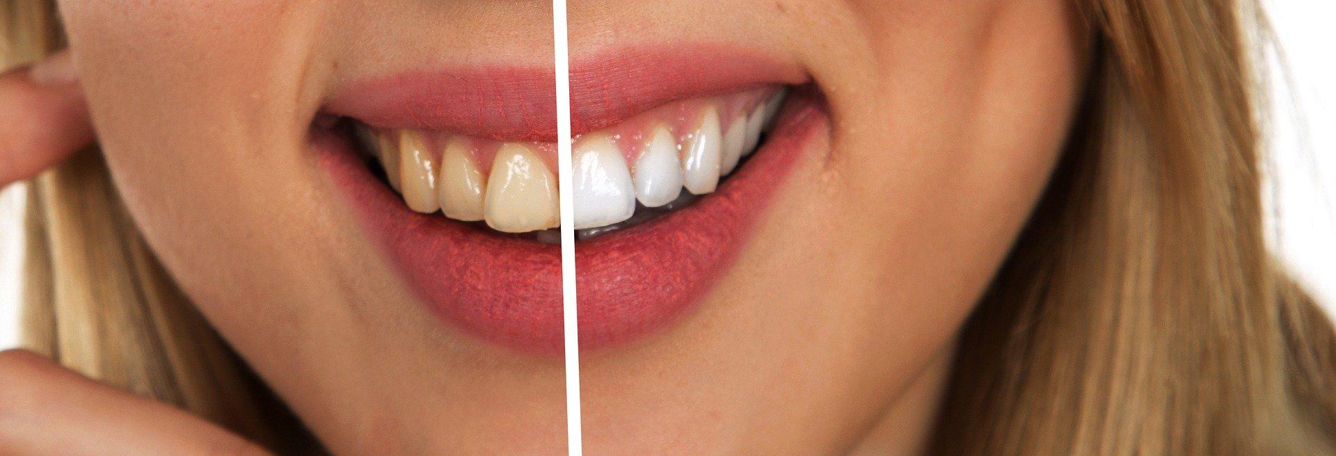 soin dentiste